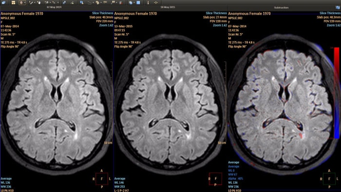 MR longitidual brain imaging