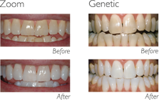 Coloración dental - Blanqueamiento dental