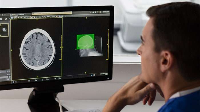 Philips Incisive CT gets even smarter with debut of AI-enabled Precise Suite
